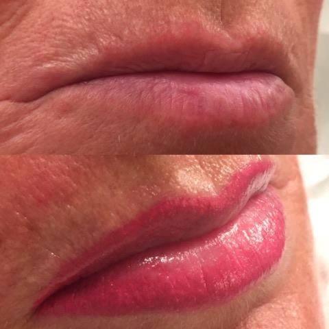 trucco-permanente-labbra-estetica-venere