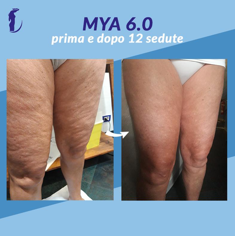 11_prima_dopo_mya_gambe1