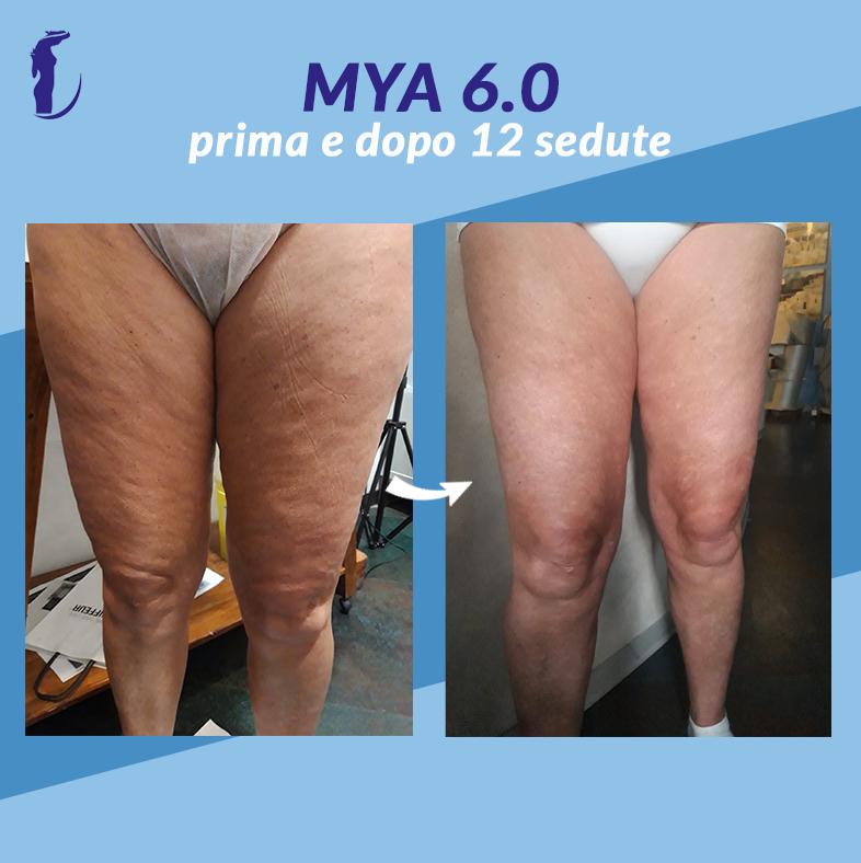 12_prima_dopo_mya_gambe2