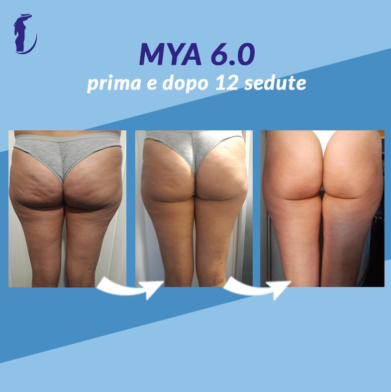 13_prima_dopo_mya_gluteiOK