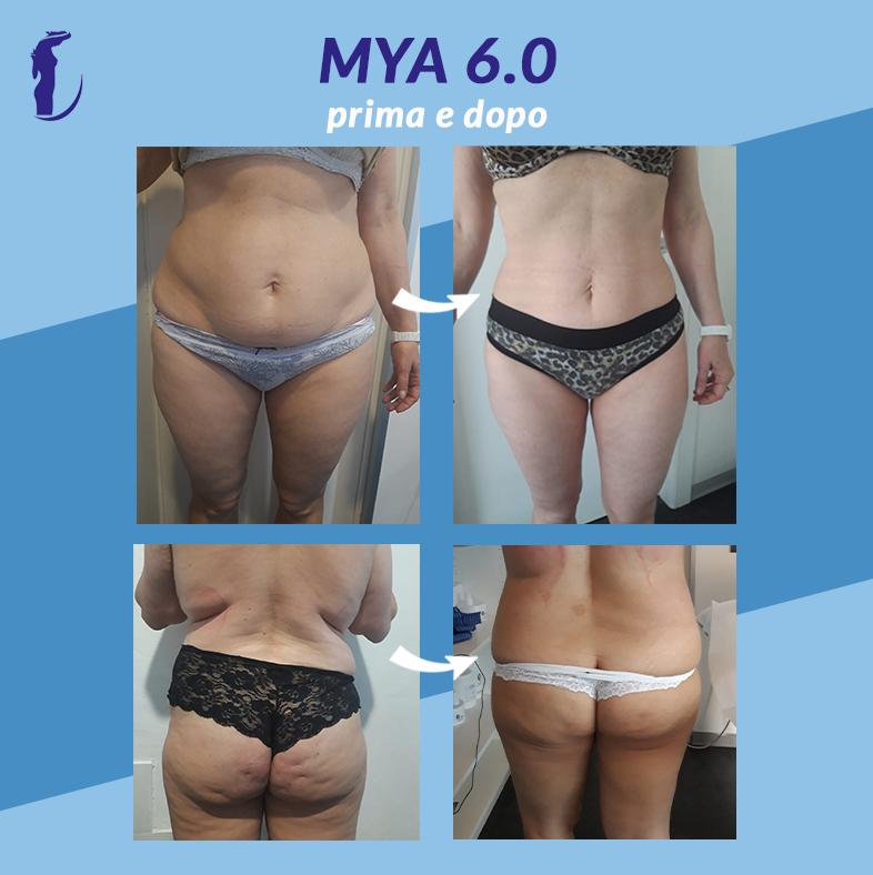 mya6_prima e dopo_3